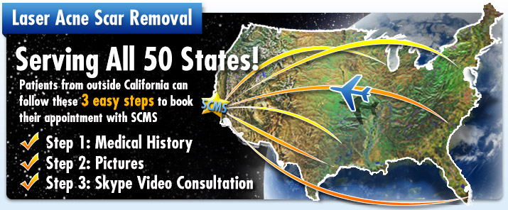 Laser Acne Scar Removal Serving all 50 states