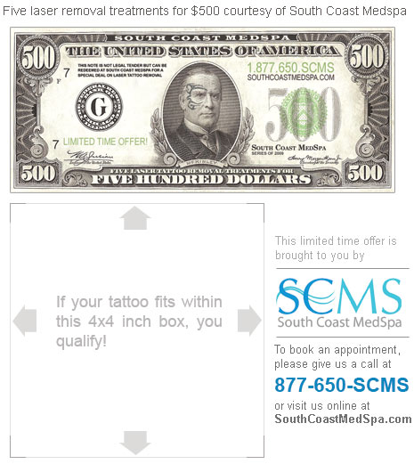 11 laser tattoo removal san diego cris cyborg world for Tattoo shops in ocean county nj