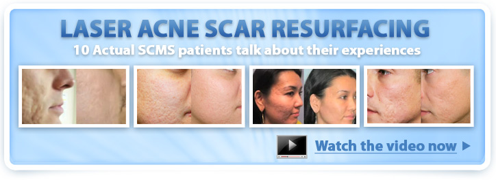 Ten Patients testify about SCMS laser acne scar resurfacing
