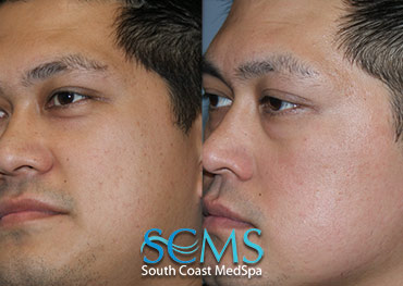 Laser Resurfacing - Cheek Acne Scars