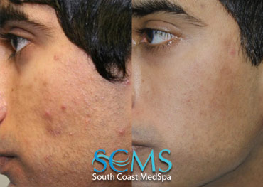 Laser Resurfacing - Medium Skin Toned Male