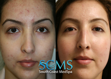 Laser Resurfacing - Forehead Acne Scars