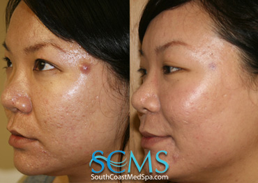Laser Acne Scar Removal - Asian Patient