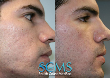 Laser Resurfacing - Male