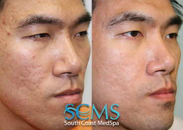 Laser Skin Resurfacing Before and After- Asian Male Patient