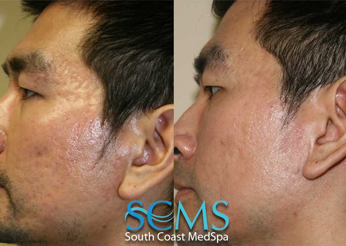 Laser acne scar removal treatments laser acne scar removal cost laser