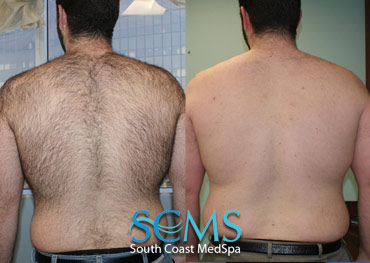 Laser Hair Removal - Shoulders and back