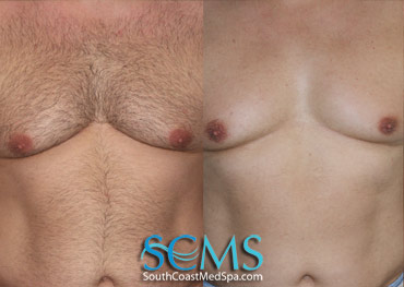 Laser Hair Removal Before and After Chest