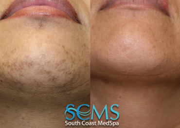 Laser Chin hair Removal