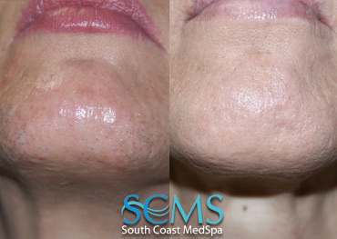 Laser Hair Removal Chin - Female Patient