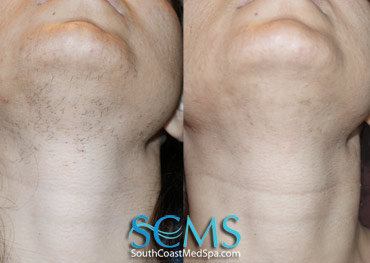 Laser Hair Removal Before and After Face