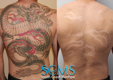 Laser Tattoo Removal Dragon Tattoo Full Back Removal