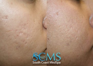 Laser Skin Resurfacing - Indian Patient