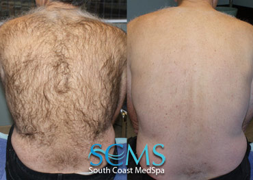 Laser Hair Removal - Older Gentleman - Back