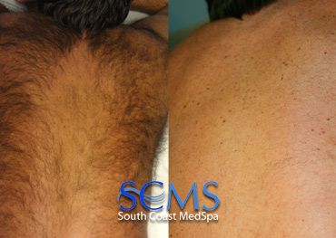 Laser hair removal - full back