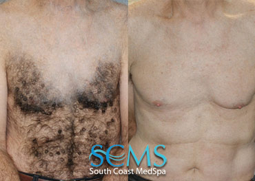 Laser Hair Removal - Before and After - Male Chest