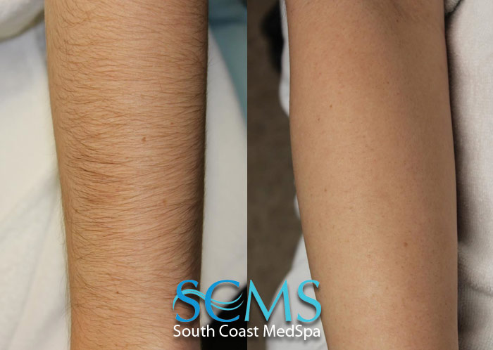 ... Removal | Laser Acne Scar Removal | Laser Tattoo Removal | South Coast