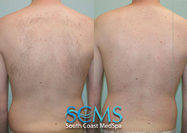 Laser Hair Removal - Upper Back