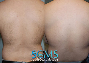Laser Hair Removal - Male Back