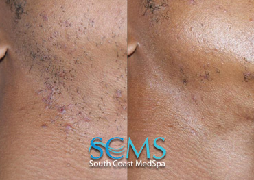 Laser Hair Removal and Razor Bump Removal - Face