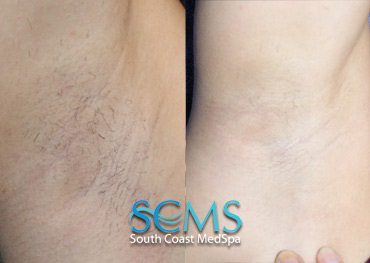 Laser Hair Removal - Female - Underarm