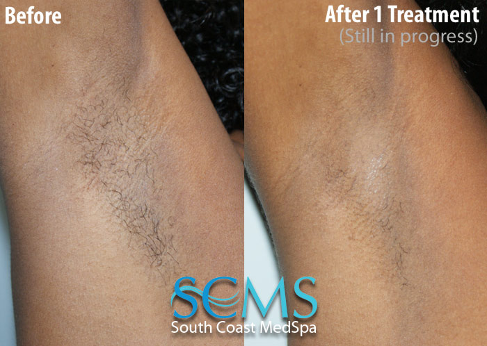 Arm Laser Hair Removal