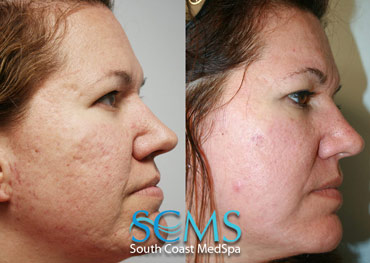 Laser Skin Resurfacing - White Female