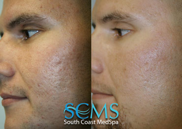 Laser skin resurfacing - male latino