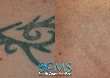 Laser Tattoo Removal - Upper Arm