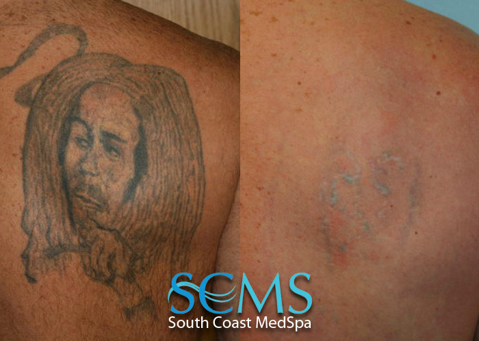 Laser Tattoo Removal Gallery, Before and After Laser Tattoo Removal