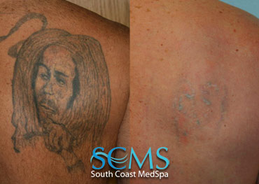 Laser Tattoo Removal Before and After Photo