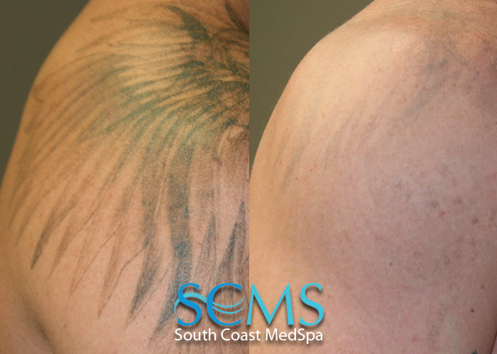 Laser tattoo removal gallery before and after laser for Tattoo removal lasers