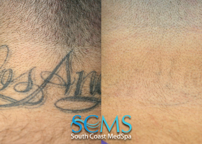 Laser tattoo removal gallery before and after laser for Laser tattoo removal chicago