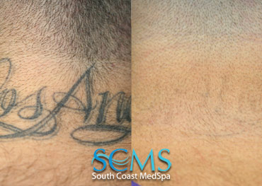 Laser Tattoo Removal - Neck