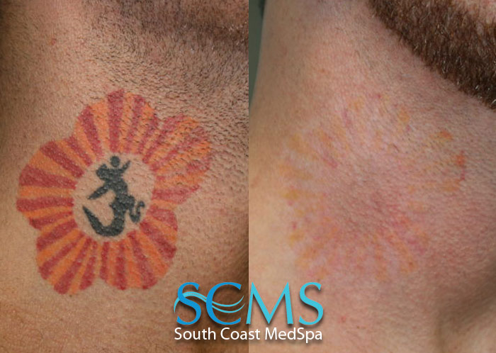 Laser tattoo removal gallery before and after laser for Best tattoo removal laser