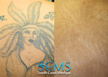 Laser Tattoo Removal - Lower Back