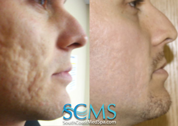 More laser acne scar removal before and after pictures. (click to ...