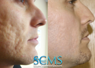 Laser Acne Scar Removal And Skin Resurfacing In Los