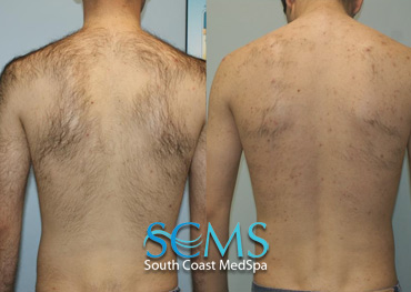 Male Back/Shoulders after 4 treatments