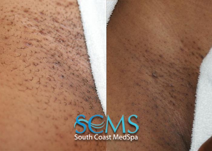 Laser Hair Removal Dark Skin