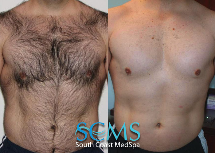 Laser Hair Removal Deal Los Angeles | Laser Hair Removal ...