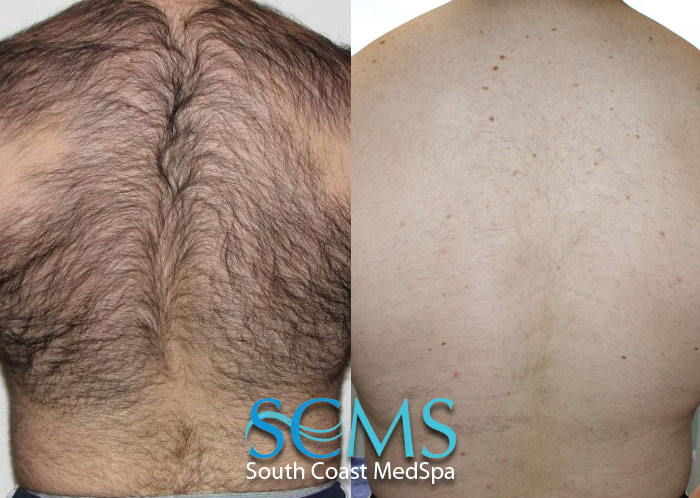 The Best Back Hair Removal For Men Laser Hair Removal For