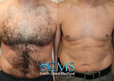 Laser Chest Hair Removal - Male Patient