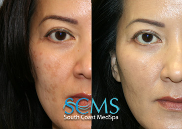 Laser Resurfacing - Asian Female
