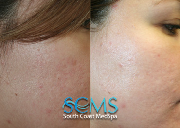 Laser Resurfacing - Cheek Scars