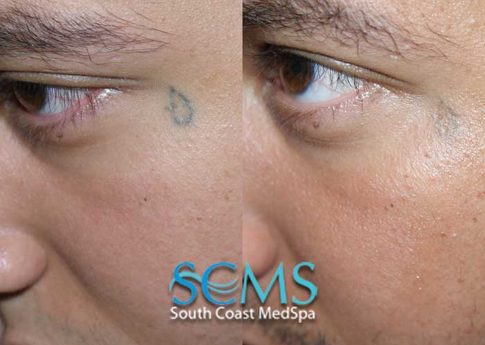 Laser tattoo removal gallery before and after laser for Saline tattoo removal