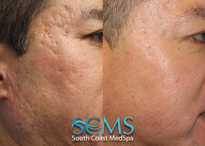 Acne Scars Laser Cost Laser Acne Scar Removal Best Treatment For Acne Scars Cost For Acne Scarring