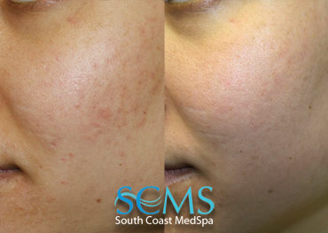 Laser Skin Resurfacing - Latina Patient