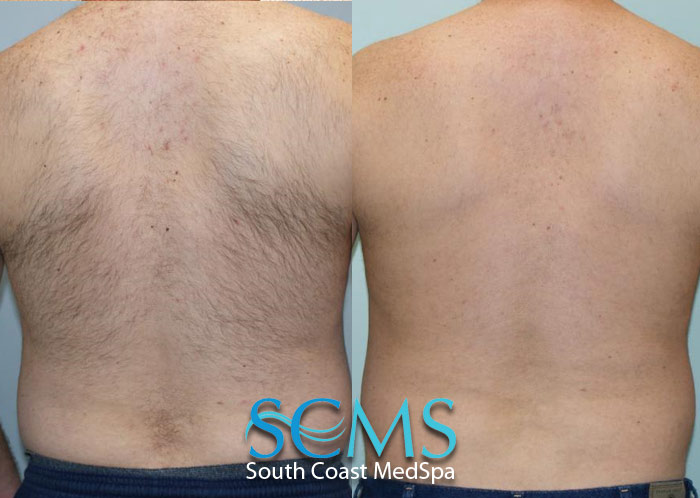 Laser Hair Removal Los Angeles Laser Hair Removal Orange County Body Hair Removal Laser Acne Scar Removal Laser Tattoo Removal South Coast Medspa Clinic