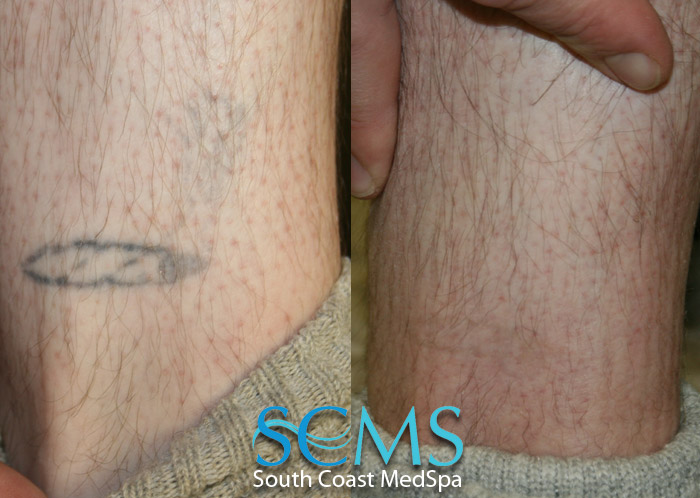 South coast medspa laser hair removal laser skin for Tattoo removal milwaukee